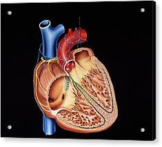 Heart Structure Acrylic Print by Francis Leroy, Biocosmos