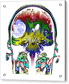 Right Sided Meningioma Acrylic Print by Medical Body Scans