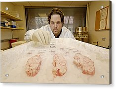Technician Examines Human Brain Sections Acrylic Print by Volker Steger