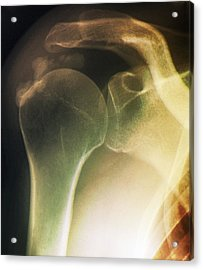 Tendinitis Of The Shoulder, X-ray Acrylic Print by Zephyr