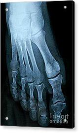 X-ray Image Of Mature Man's Feet Acrylic Print by Sami Sarkis