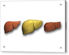 Liver: Normal, Fatty, Cirrhotic Acrylic Print by Pasieka