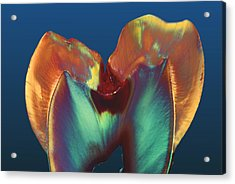 Polarised Lm Of A Molar Tooth Showing Decay Acrylic Print by Volker Steger