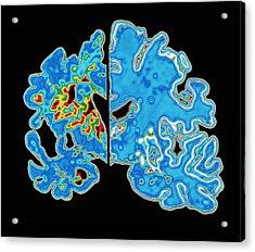 Sectioned Brains: Alzheimer's Disease Vs Normal Acrylic Print by Pasieka
