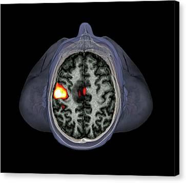 Brain Tumour Canvas Print by Zephyr