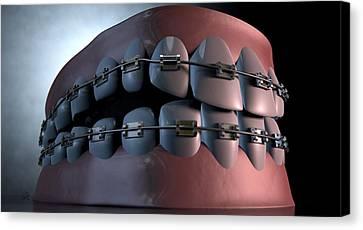 Creepy Teeth With Braces Canvas Print by Allan Swart