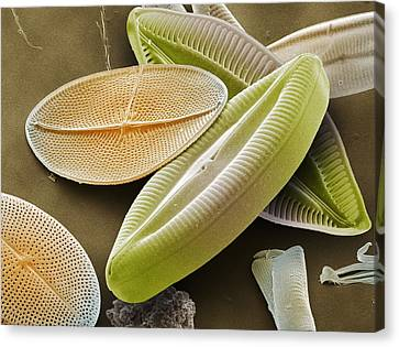 Diatoms, Sem Canvas Print by Power And Syred
