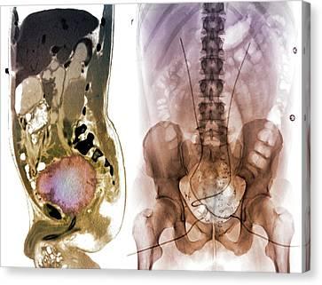 Post-operative Bladder Cancer Canvas Print by Zephyr