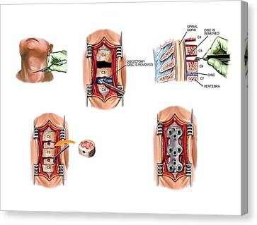 Surgery To Fuse The Cervical Spine Canvas Print by John T. Alesi