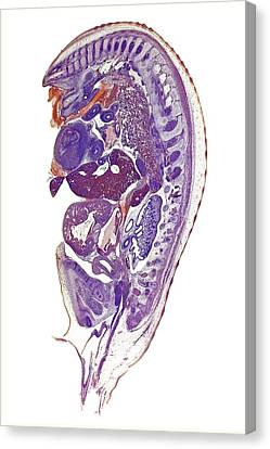 Chicken Embryo Canvas Print by Dr Keith Wheeler