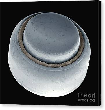 Hearing Aid Battery, Sem Canvas Print by Steve Gschmeissner