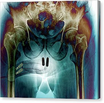 Incontinence Implant Canvas Print by Zephyr
