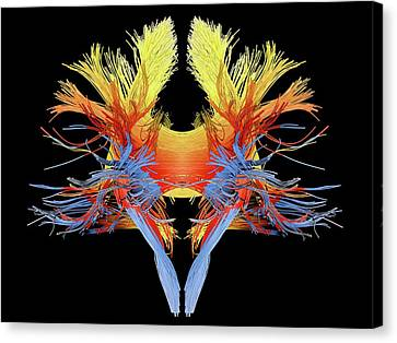 White Matter Fibres Of The Human Brain Canvas Print by Alfred Pasieka