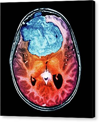 Benign Brain Tumour Canvas Print by Zephyr