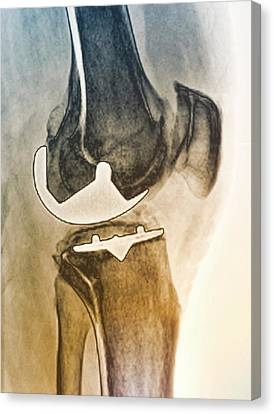 Partial Knee Replacement Canvas Print by Zephyr