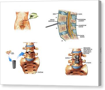 Surgery To Fuse The Lumbar Spine Canvas Print by John T. Alesi