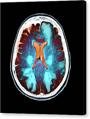 Brain In Toxic Encephalopathy Canvas Print by Zephyr