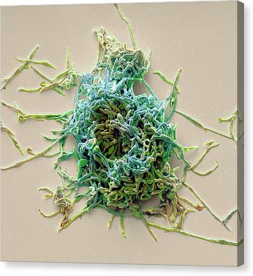 Mycoplasma Pneumoniae Canvas Print by Steve Gschmeissner