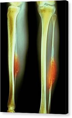 Bone Tumour Canvas Print by Mike Devlin