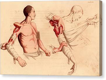 Amputation Of The Arm At The Shoulder Canvas Print by Universal History Archive/uig