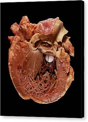 Artificial Heart Valve Canvas Print by Pr. M. Forest - Cnri