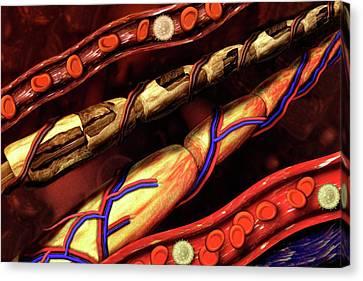 Blood Vessel And Nerve Damage Canvas Print by Carol & Mike Werner