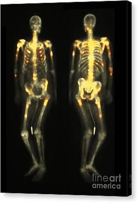 Bone Scan Showing Multiple Metastases Canvas Print by Scott Camazine