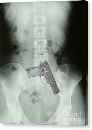 Chest X-ray Showing Hidden Gun Canvas Print by Scott Camazine