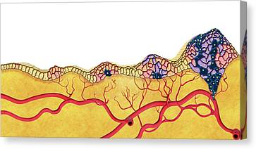 Development Of Cancer Canvas Print by Claus Lunau