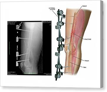 External Fixation Of Fractured Femur Canvas Print by John T. Alesi