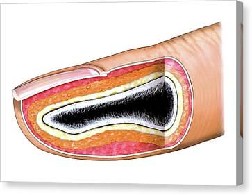 Fingernail Canvas Print by Asklepios Medical Atlas