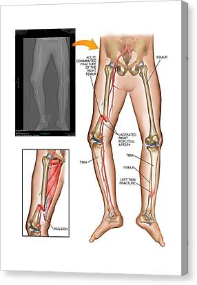Fractures Of Femur And Tibia Canvas Print by John T. Alesi