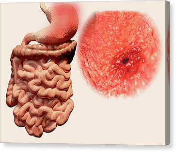 Gastric Ulcer Canvas Print by Juan Gaertner