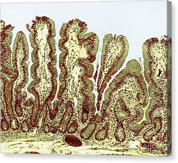 Giardiasis Light Micrograph Canvas Print by Science Source