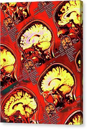 Human Brain Canvas Print by Larry Berman