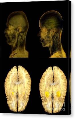 Jealousy Research, Mri Brain Scans Canvas Print by Thierry Berrod, Mona Lisa Production