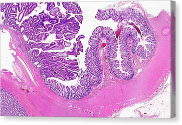 Large Bowel Tumour Canvas Print by Microscape