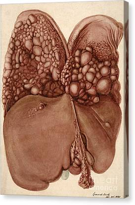 Liver And Diaphragm Cancer Growths Canvas Print by Wellcome Images