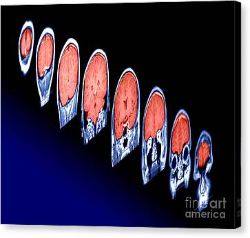 Magnetic Resonance Imaging Mri Canvas Print by Erich Schrempp