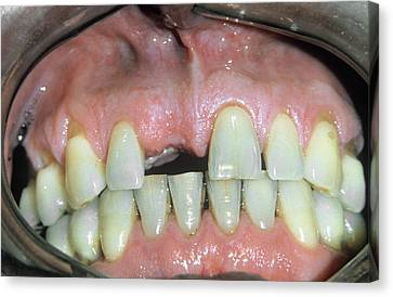 Missing Front Tooth Canvas Print by Dr. M. Gaillard/cnri