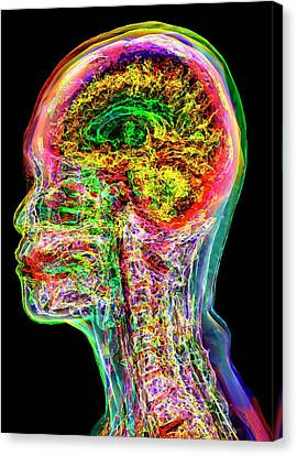 Normal Adult Head And Neck Canvas Print by K H Fung
