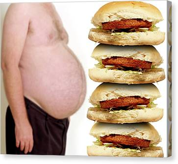 Obesity And Junk Food Canvas Print by Victor De Schwanberg