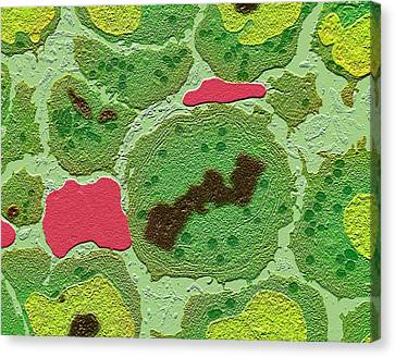 Plasma Cell Cancer Canvas Print by Science Photo Library