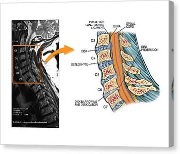 Protruding Disc In The Cervical Spine Canvas Print by John T. Alesi