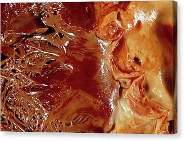 Purpura Or The Heart Canvas Print by Pr. R. Abelanet - Cnri