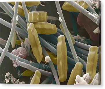 Sem Of Diatoms And Blue-green Algae Canvas Print by Power And Syred