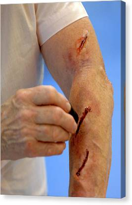 Simulated Arm Lacerations Canvas Print by Public Health England