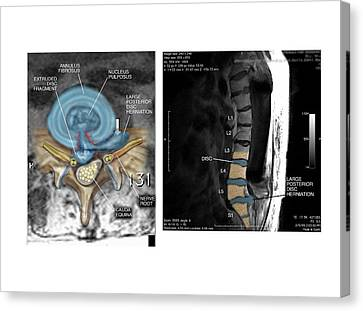 Slipped Disc In The Lumbar Spine Canvas Print by John T. Alesi
