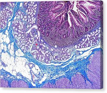 Small Bowel Canvas Print by Microscape