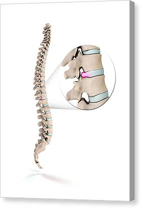 Spinal Disc Prolapse Canvas Print by Mikkel Juul Jensen